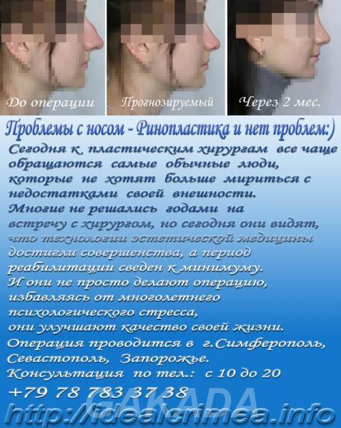 Ринопластика изменение формы и размера носа, Симферополь